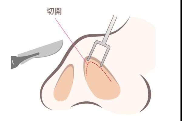 クローズ法(鼻腔内を切開)
